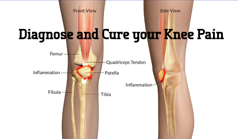 Diagnose and Cure your Knee Pain